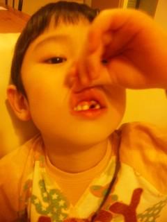 一本目の歯
